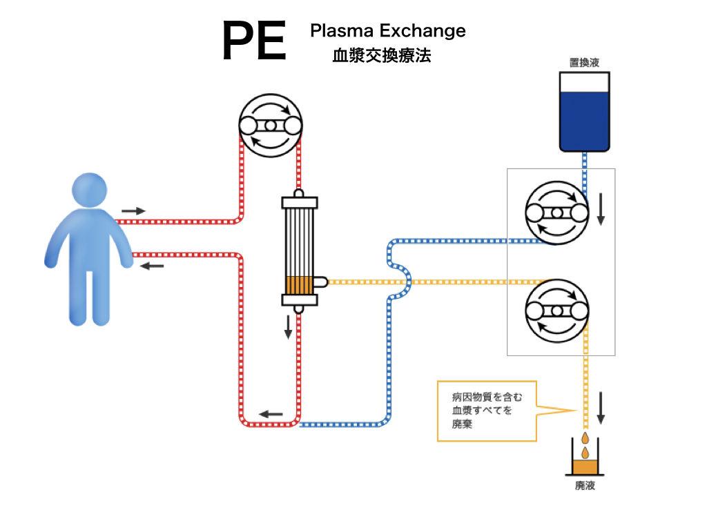 膠質 浸透 圧 看護 血漿